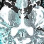 Le Nexus du Docteur Erdmann, mal au cerveau